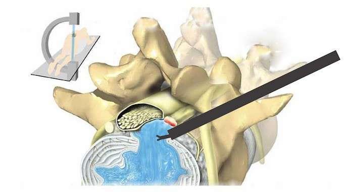 Operatie hernie de disc